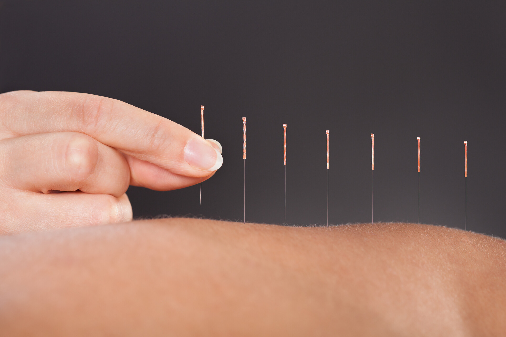 Healing-Headaches-with-Acupuncture